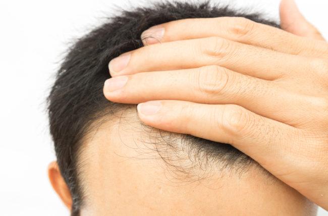 HairLoss 5 650x428 1