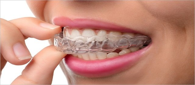 Mouthguards otherwise called gumshields