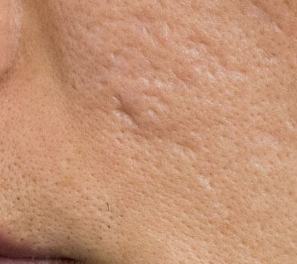 Celebrity Doctor Shares Tips On How To Eliminate Acne Scars