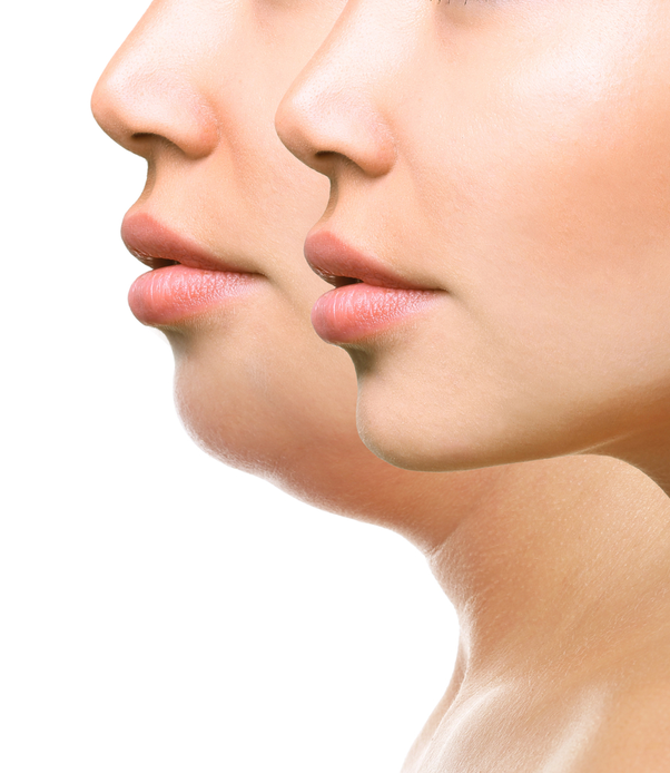 Amazing Tips To Remove Face Fat Quickly
