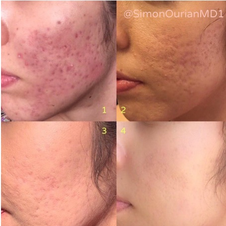 Coolaser Acne and Acne Scars Treatment from @SimonOurianMD1
