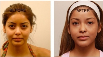 Non Surgical Under Eye Dark Circles Treatment from www.epionebh.com